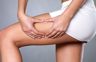 donna che controlla pelle a buccia d'arancia e cellulite sulla gamba