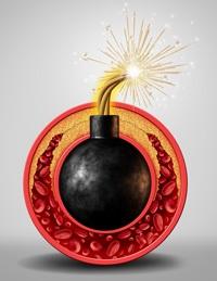 immagine a forma di bomba che spiega cos'è colesterolo cattivo