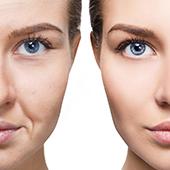 foto di donna prima e dopo uso di collagene e impatto sulla pelle