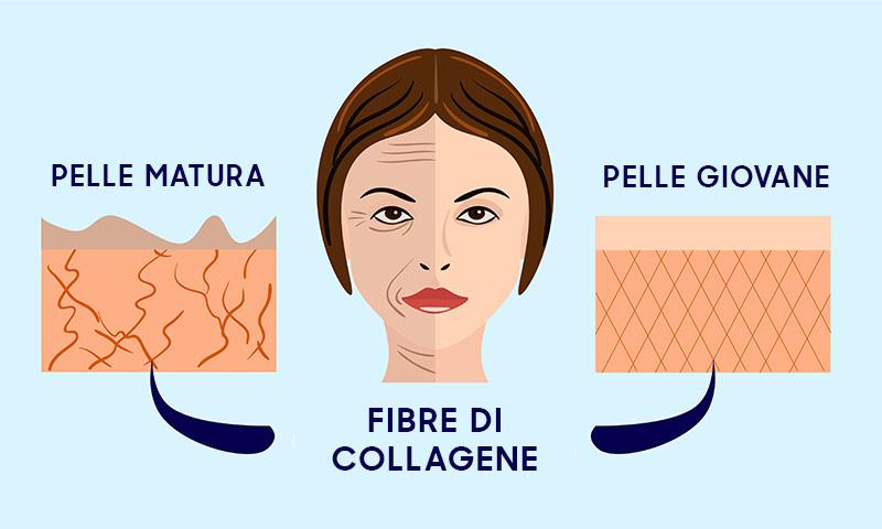 grafica di donna prima e dopo uso di collagene e impatto sulla pelle