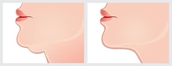 grafica doppio mento prima e dopo utilizzo crema doppio mento