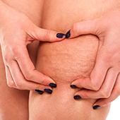 problema cellulite e buccia d'arancia localizzato su gambe