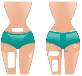 grafica di corpo di donna con cerotti dimagranti attaccati su diverse posizioni corpo