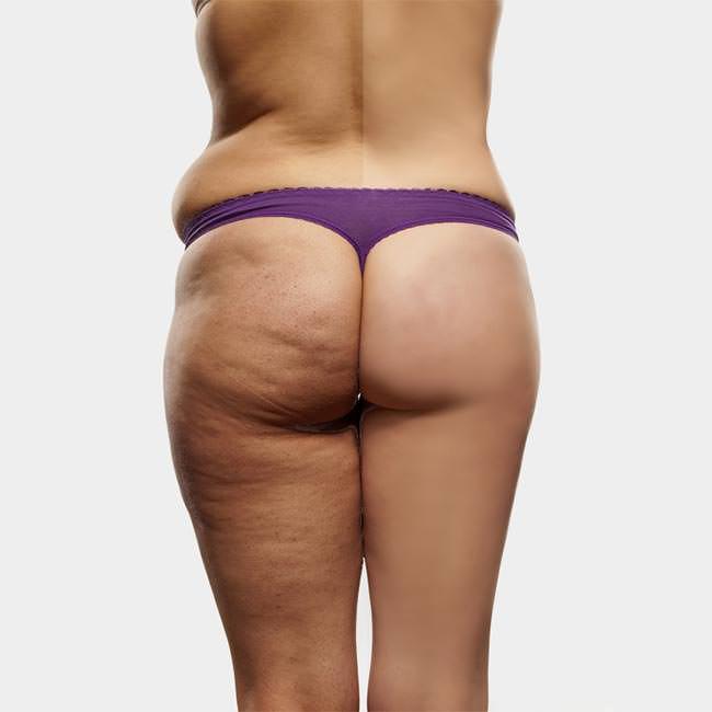 Tre rimedi naturali per la cellulite